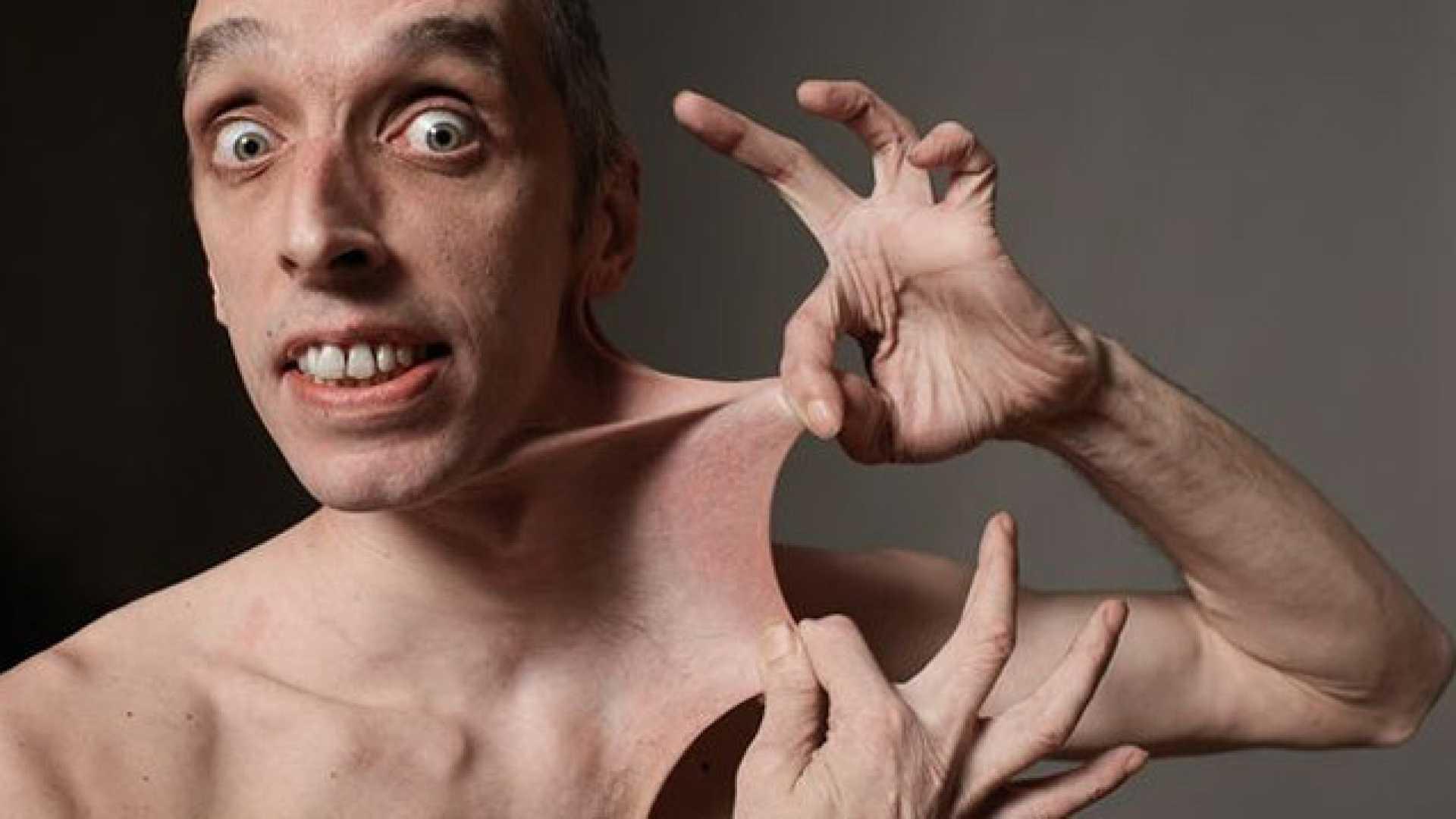 A kollagén hiánya miatt az Ehlers-Danlos-szindróma ijesztő lehet  <br>Hiányzó kollagén a bőr nyúlásához, ízületi problémákhoz, deformációhoz vezethet
